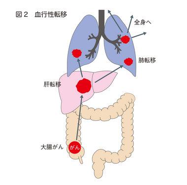 大腸がんの広がり方:がんナビ