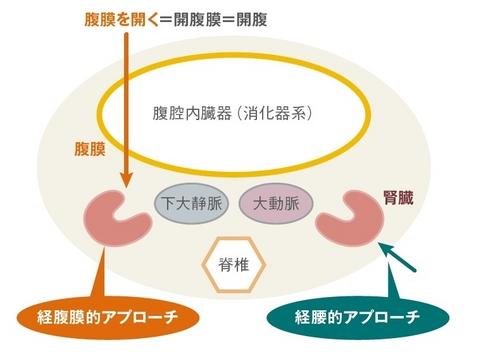 腎がんと診断されたら~よく理解し、最適な治療を選択するために~(4 ...
