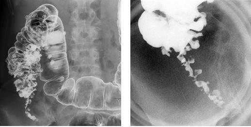 下 腹部 違和感 下腹部の違和感や痛みの原因は何?男性に多い病気は2つ!