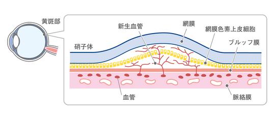加齢黄斑変性に対するiPS細胞を用いた治療技術:日経メディカル