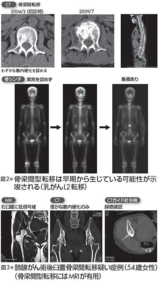 多くのがん骨転移で集積が見られ全身骨の転移巣の広がりの診断に有用であるが、骨芽細胞が活性化しない骨梁間転移や骨融解のみの場合は集積が認めにくいため注意を要