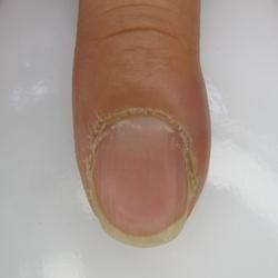 とげ が 刺さっ た 腫れ
