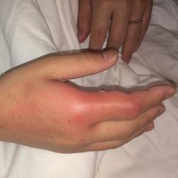 蜂巣 炎 と は