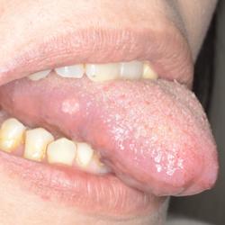 舌癌と口内炎と見分けるための3つのポイント:日経メディカル