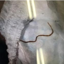 寄生 虫 サナダムシ